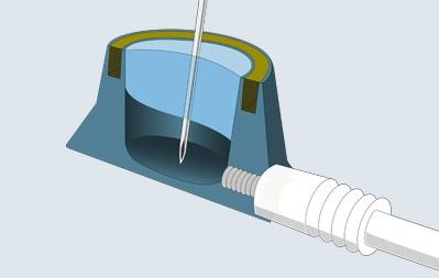 Querschnitt Portkathetersystem (TitaJet™ light)